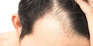 What You Can Do To Treat Alopecia Immediately